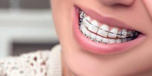 pemasangan kawat gigi, bahaya pasang kawat gigi, pasang behel